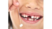 Когда выпадают молочные зубы у детей: схема смены на коренные
