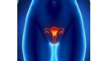 Эндометрит матки: что это такое доступным языком