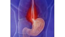 Катаральный рефлюкс эзофагит: что это такое, симптомы причины появления, методы лечения