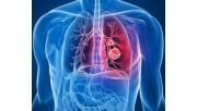 Сколько осталось жить человеку с метастазами в легких