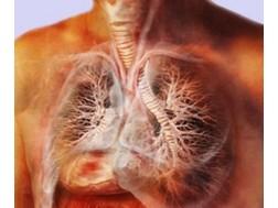 Симптомы и лечение трахеита у взрослых, отзывы о эффективности методов