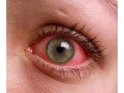 Аллергический конъюнктивит: симптомы и лечение, фото как выглядит