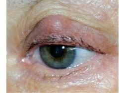 Блефарит: симптомы и лечение, фото, причины возникновения