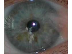 Найдено решение как лечить деструкцию стекловидного тела глаза