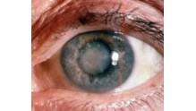 Как предотвратить, распознать и вылечить катаракту