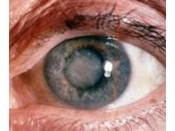 Всё о катаракте: причины, симптомы, лечение и профилактика, операция у взрослых и детей