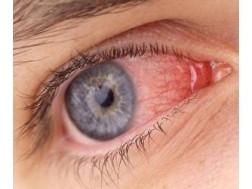 Коньюктивит глаз: лечение у взрослых, капли, народными средствами, фото