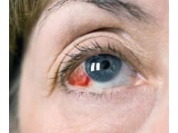 Кровоизлияние в глаз: причины и лечение, фото как происходит