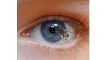 Причина и лечение появления мошки в глазах