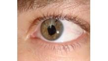 Лечение и цена операции при отслоение сетчатки глаза