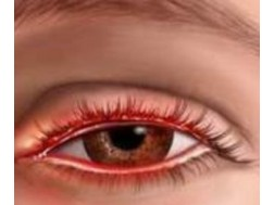 Причины и лечение покраснение век глаз