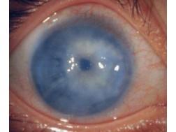 Возможные причины, факторы и проявления глаукомы