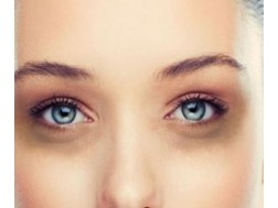 Причины появления темных кругов под глазами у женщин