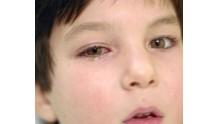Как вылечить быстро у детей вирусный коньюктивит