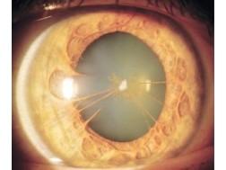 Методы лечения вторичной катаракты