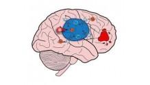 Чем опасна глиобластома головного мозга 4 степени, фото больных, как умирают