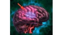 Последствия ишемического инсульта правой стороны мозга