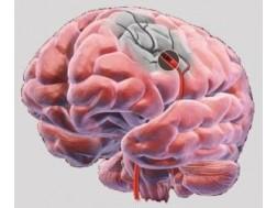 Последствия и сколько живут после ишемического инсульта левой стороны