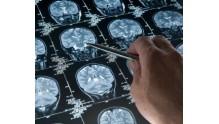 Какой метод лучше при обследовании мозга КТ или МРТ?