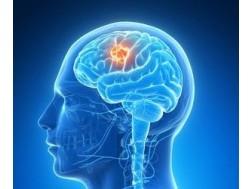 Как проходит лечение менингиомы головного мозга без операции