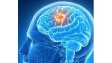 Симптомы опухоли головного мозга на ранних стадиях