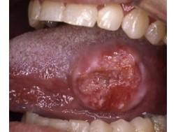 Как выглядит болезнь рак языка, фото начальной стадии и запущенной формы