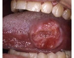 Особенности появления и развития рака языка