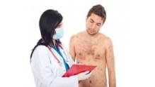 Как выглядит сифилитическая сыпь у мужчин, фото на теле