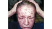 Сыпи на коже у женщин при заболевании сифилисом