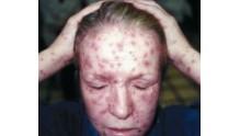Как выглядит сифилитическая сыпь у женщин, фото на теле