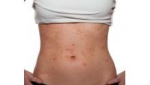 Лечение аллергической сыпи на теле у взрослого человека