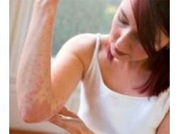 Антигистаминные препараты при аллергии кожи