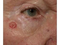 Как выглядит базалиома на начальной стадии, симптомы и фото заболевания