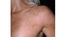 Симптомы, лечение, фото цветного лишая у человека на коже