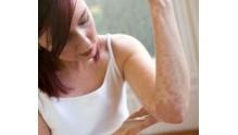 Как выглядит дерматит. Симптомы и лечение у взрослых