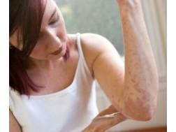 Как выглядит дерматит, фото, симптомы и лечение у взрослых