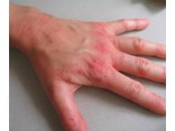Как выглядит экзема на руках, причины и лечение, фото