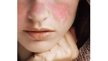 Симптомы, причины, фото красной волчанки у взрослых женщин и мужчин