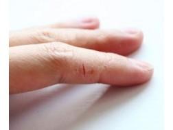 Почему трескаются пальцы на руках, причины, лечение и профилактика