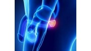 Симптомы и лечение аденомы предстательной железы, народные средства, профилактика
