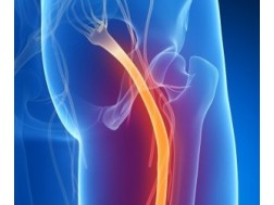 От чего происходит воспаление седалищного нерва, симптомы и лечение, чем опасно