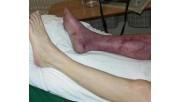 Гангрена ноги: фото, начальная стадия, первые признаки