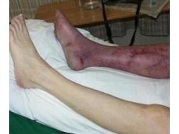 Первые признаки гангрены ноги. Виды и последствия
