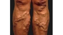 Как определить и лечить тромбофлебит нижних конечностей