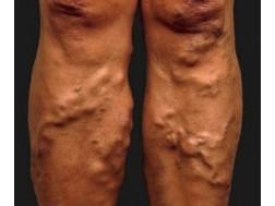 Все про тромбофлебит нижних конечностей: симптомы, фото и лечение
