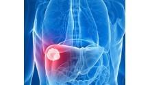 Как образуются метастазы в печени, прогноз срока жизни, отзывы о болезни