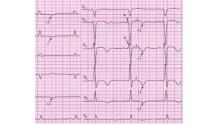 Как выглядит экг при инфаркте миокарда, фото с расшифровкой