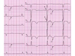 Расшифровка ЭКГ с диагнозом инфаркт