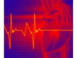 Мерцательная аритмия: причины, признаки. Как лечить?