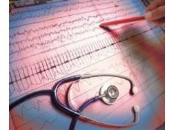 Синусовая аритмия сердца: чем опасна и что это такое